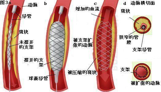 心脏支架原理图解